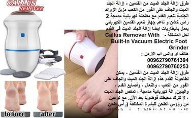 طريقة تنعيم القدمين بسرعة - تنعيم الكعب ازالة الجلد الميت من كعب القدمين - إزالة الجلد الميت والجاف